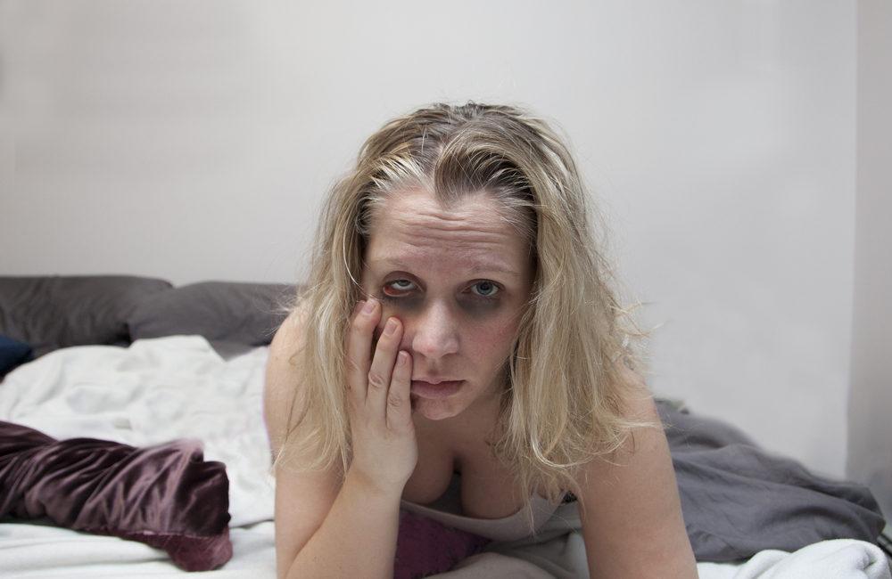 Девушка с похмелья фото клиника Равновесие